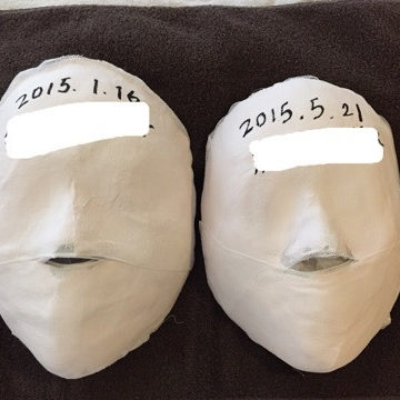 H様 小顔骨美導の変化 イメージ