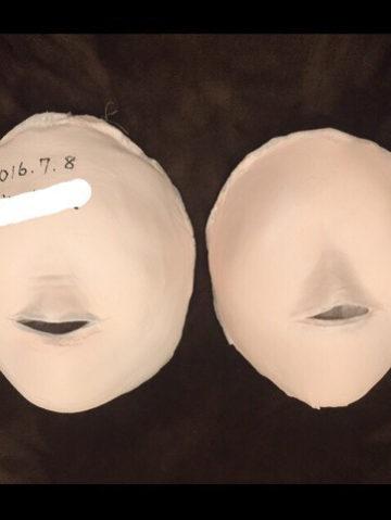 S様小顔コースご卒業 イメージ