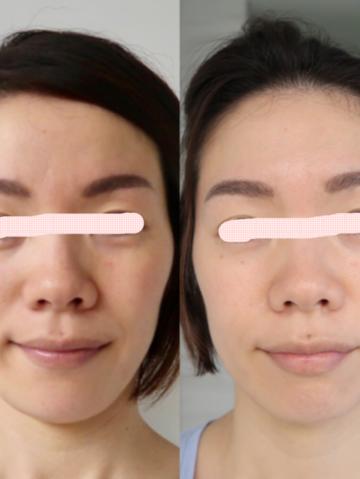 最先端の美容技術を取り入れた肌再生メニューを「ワンダースキン」と命名しました。 イメージ