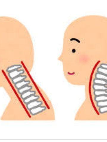 その辛い首肩コリはスマホのせい!?身体に大きな影響を与えるスマホ首(ストレートネック) イメージ