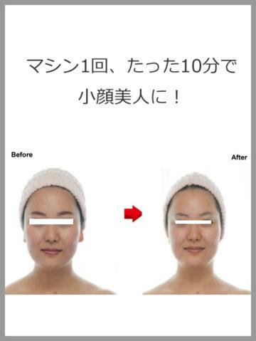 小顔・引き締め・リフトアップ効果大!「小顔フォーカス」で使用するマシン、全容徹底大解剖! イメージ